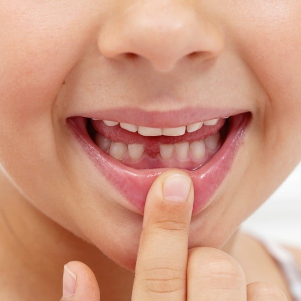 a child pointing to their open mouth with a missing tooth on the bottom